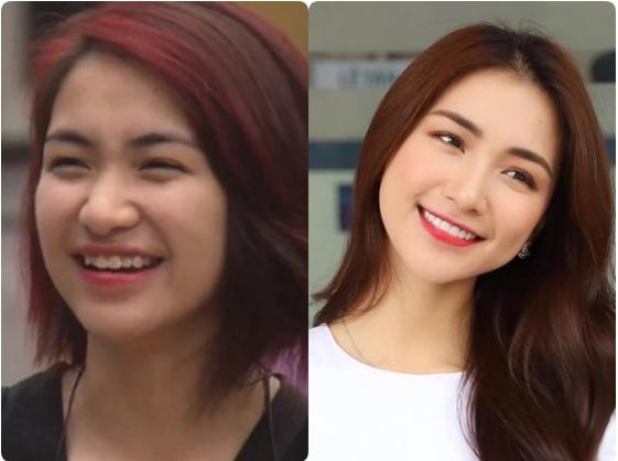 Hoà Minzy lên tiếng thừa nhận thẩm mỹ duy nhất một điểm trên gương mặt